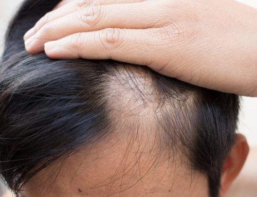 Alopecia areata: Características y tratamientos
