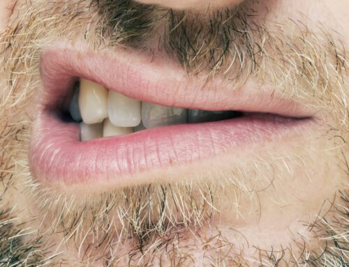 Calvas en la barba: las mejores soluciones para evitarlas
