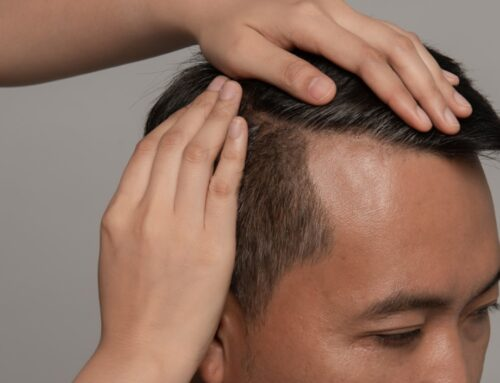 Cómo crece el pelo después de un injerto capilar