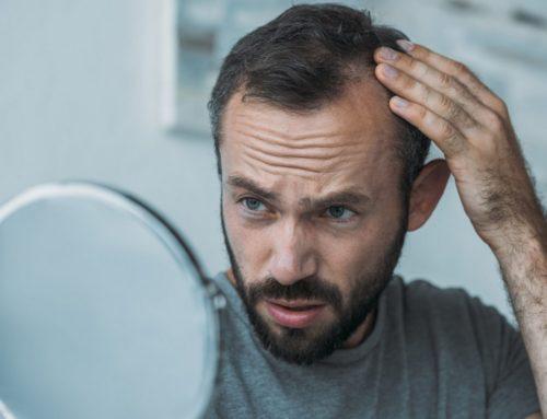 La escala Hamilton Norwood para medir la alopecia